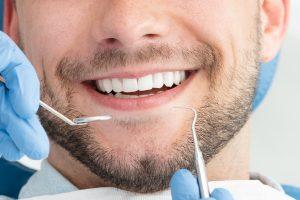ציפוי שיניים בראשון לציון