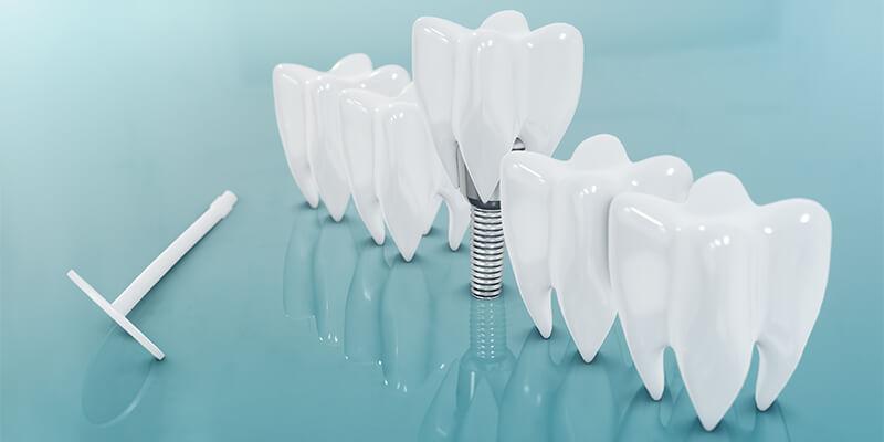 השתלות שיניים בראשון לציון