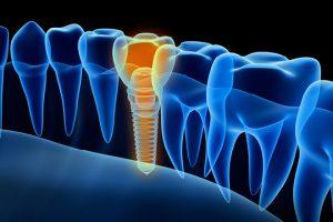 תופעות לוואי השתלת שיניים