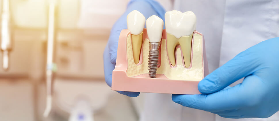 השתלת שיניים בכל הפה