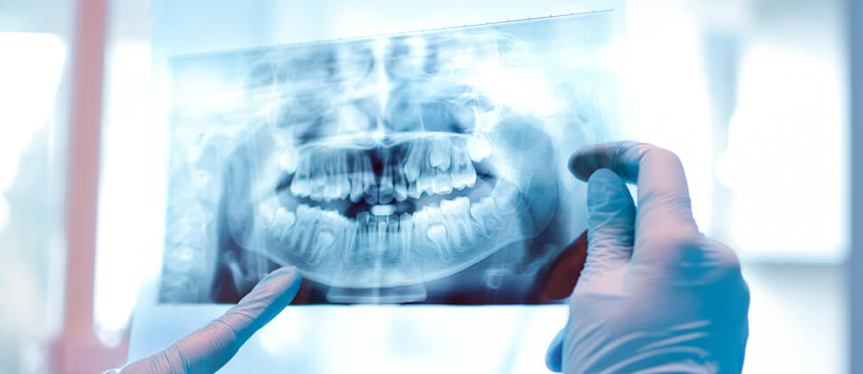 צילום CT של חלל הפה