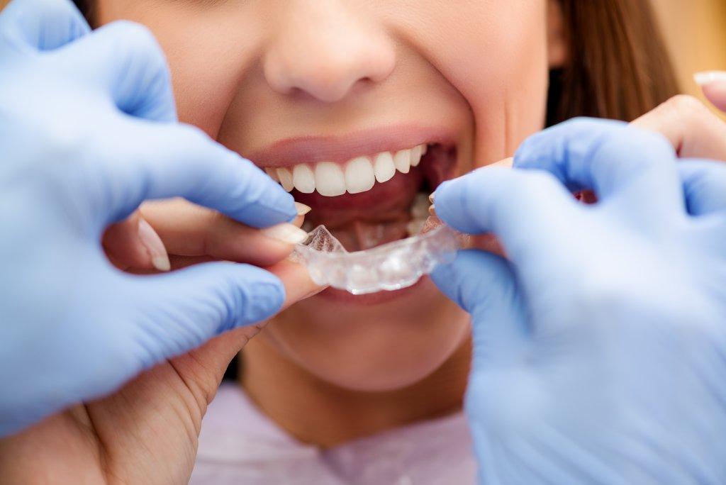 שיניים עקומות - יישור שיניים סמכים שקופים